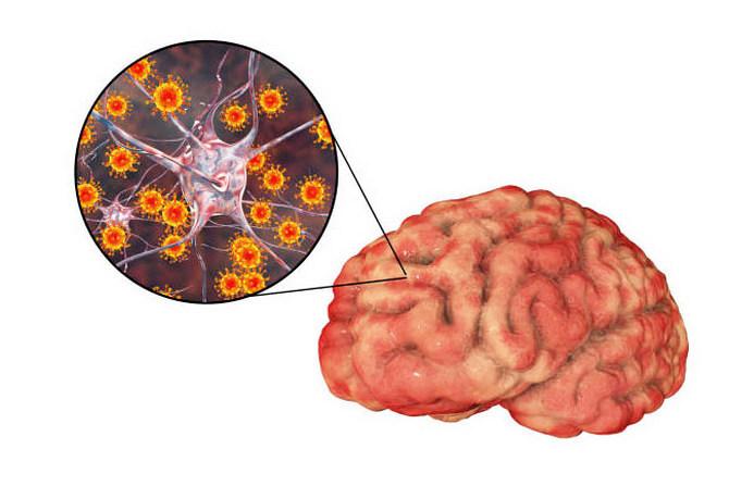 Энцефалит заразен от человека к человеку