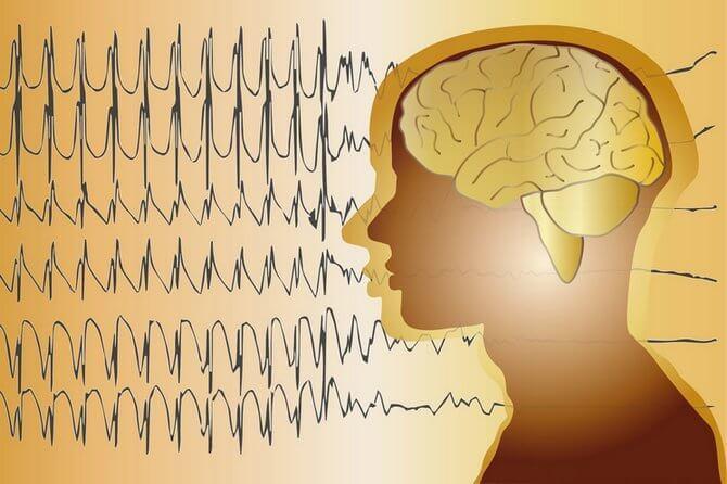 Криптогенная фокальная эпилепсия у детей: лечение и прогноз