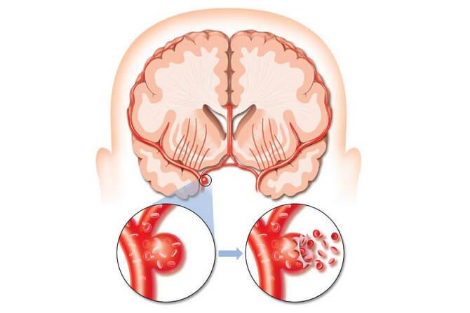 Аневризма головного мозга что это такое, симптомы и лечение