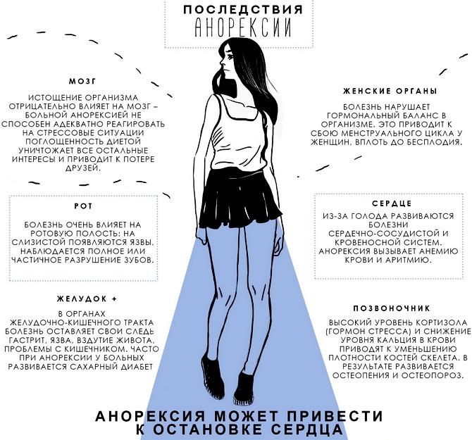 Нервная анорексия что это такое