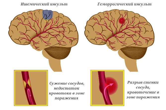 При геморрагическом инсульте спинномозговая жидкость