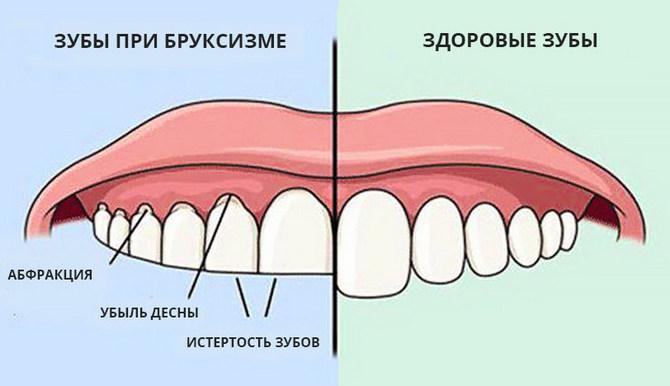 Сравнение здоровых зубов и при бруксизме