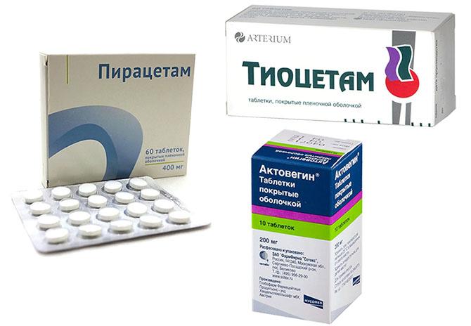 Цереброваскулярные медикаменты от головной боли