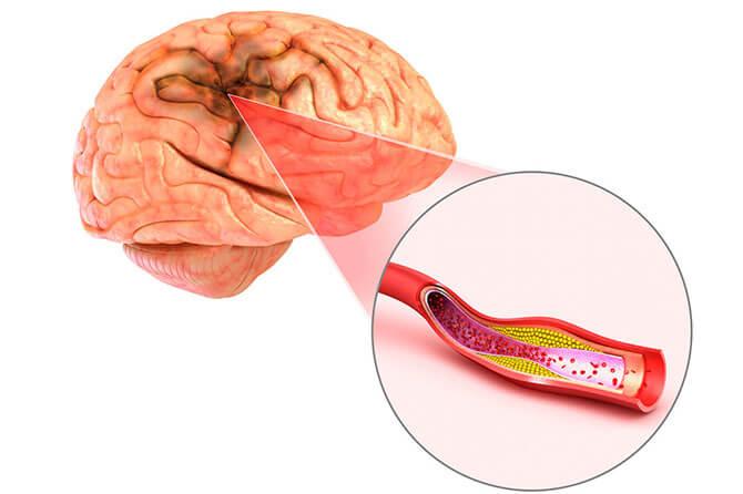 Геморрагический инфаркт головного мозга