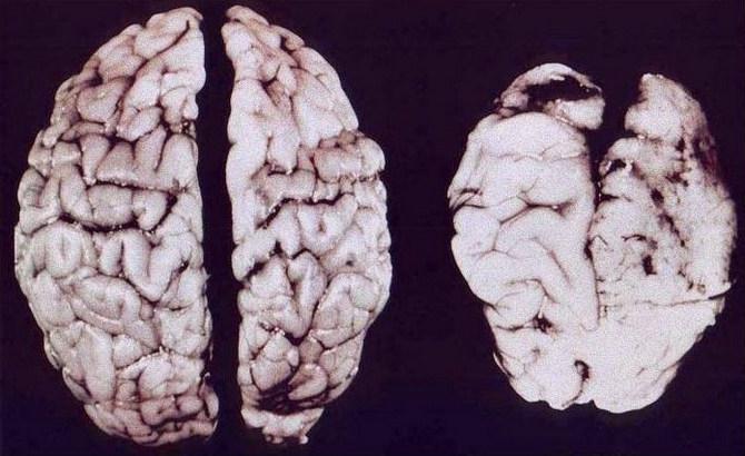 Заболевание мозга от алкоголя