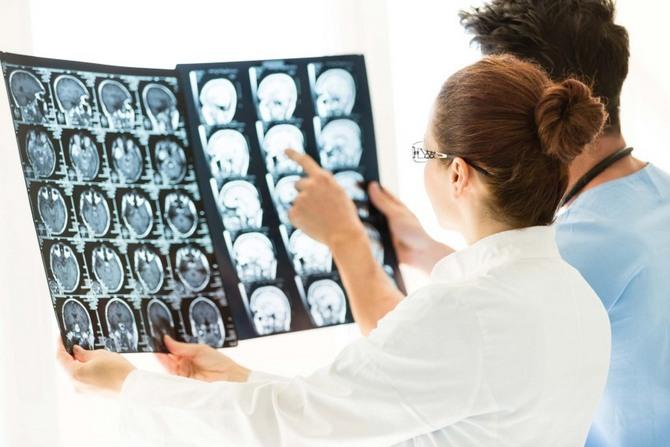Микроаденома гипофиза: симптомы, лечение и прогноз жизни