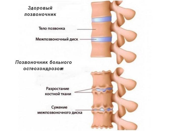 Здоровый позвоночник и с остеохондрозом