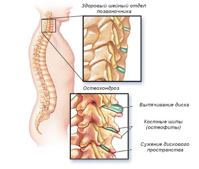 Чем купировать головную боль при шейном остеохондрозе