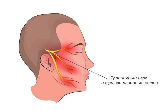 Неврит тройничного нерва